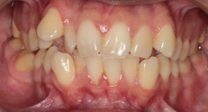 Crowding of Teeth Pre