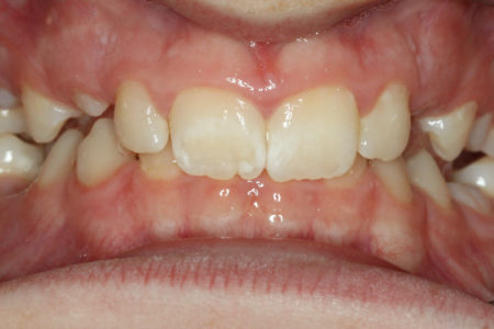 Deep overbite - Lower front teeth bite into palate Before