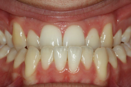 Underbite - Lower front teeth in front of upper teeth Before