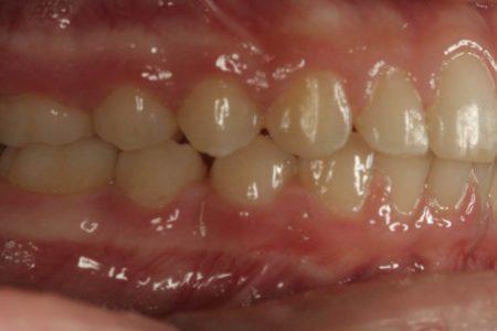 Overjet - Protruding front teeth After