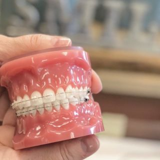 Let us introduce you to our 3M Clarity Ceramic Bracket system. • ▫️Our ceramic braces are made of clear materials and are therefore less visible on your teeth than metal braces. All of our patients who choose this option absolutely LOVE these braces, especially adults and older teenagers because they are so much less visible.  #shermanbriscoeorthodontics #SBOrtho #adultorthodontics #adultbraces #options #ceramicbraces #metalbraces #invisalign #experienceanewsmile